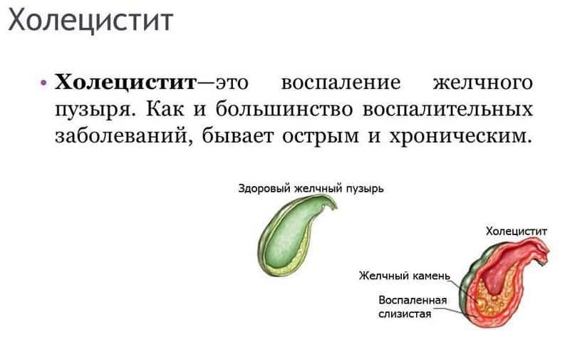 Паренхиматозный панкреатит может развиться на фоне холецистита, цирроза печени