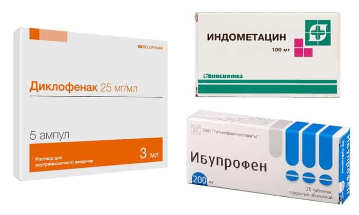 Нередко в схему медикаментозной терапии вводятся нестероидные противовоспалительные средства Диклофенак, Индометацин, Ибупрофен и т.д