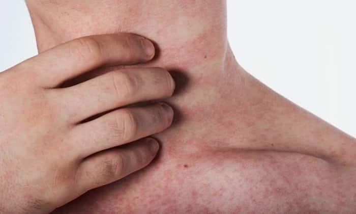 После приема препарат может возникнуть аллергическая реакция в виде сыпи и зуда