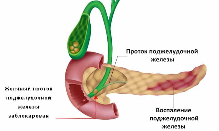 МРТ назначается при панкреатите