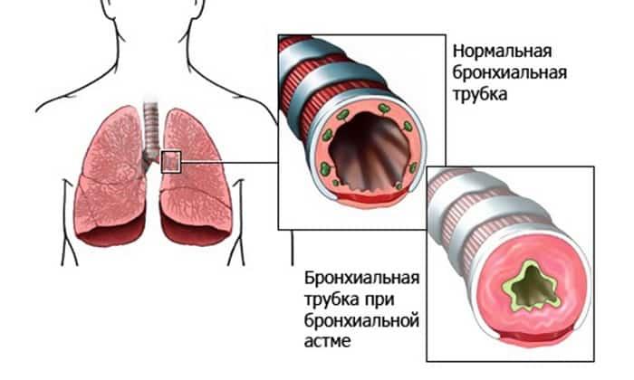 Бронхиальная астма считается противопоказание для приема НПВС