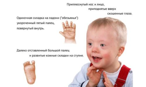 Синдром Дауна является противопоказанием к применению препарата
