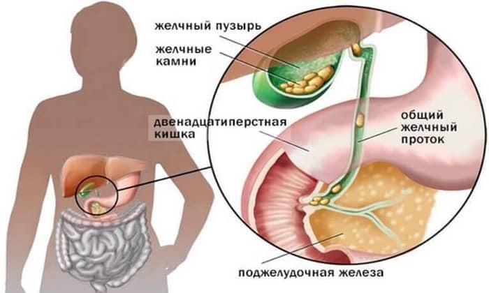 Медикамент противопоказан при камнях в желчном пузыре