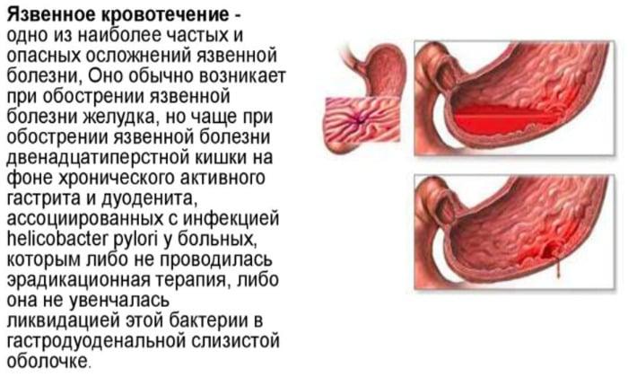Кровотечения в ЖКТ, так же является противопоказанием к приему препарата
