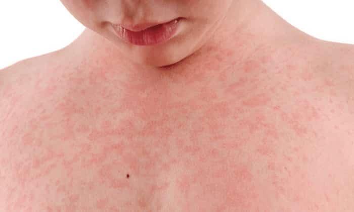 Медикамент противопоказан при аллергической реакции на компоненты препарата