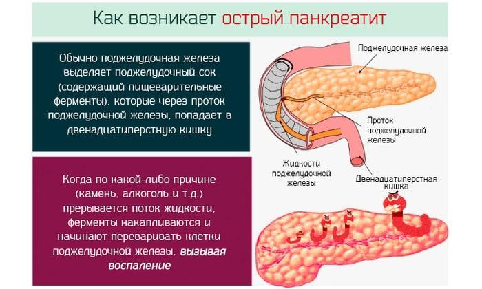 При остром панкреатите рекомендуется отказаться от этого продукта. Вернуть его в рацион можно, когда симптомы болезни полностью отступят