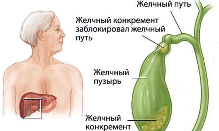 При закупорке желчевыводящих и мочевыводящих путей препарат не приминают