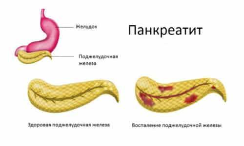 Развитию недуга может способствовать хронический панкреатит