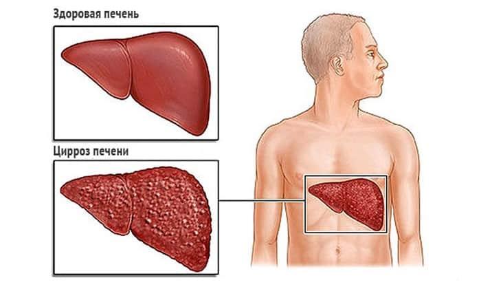 Препарат применяют при циррозе печени