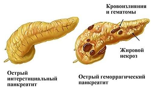 В острой стадии панкреатита медики настоятельно рекомендуют воздержаться от употребления дыни
