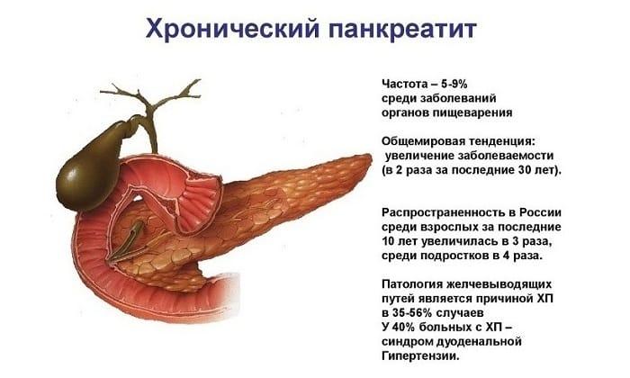 Тяжесть в поджелудочной железе появляется при хроническом панкреатите