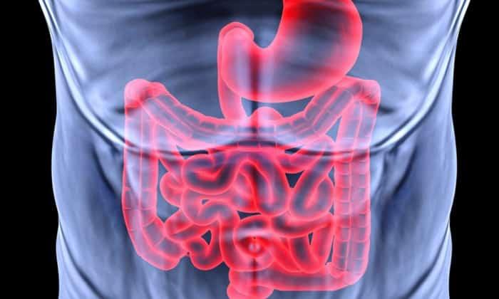 Патологии кишечника и желудка зачастую является причиной заболевания