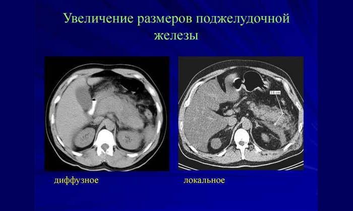 Изменение размеров железы свидетельствует о запущенном патологическом процессе