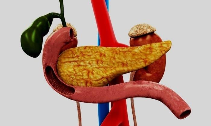 Ранние осложнения при воспалении поджелудочной железы появляются в результате нарушения функционирования эндокринного органа