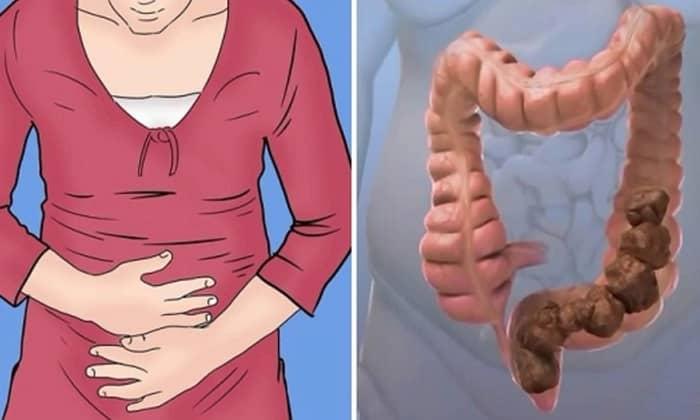 Нарушение пищеварения наблюдается в качестве осложнения