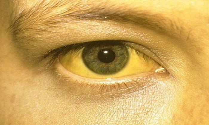 При терапии может наблюдаться побочная реакция в виде желтухи