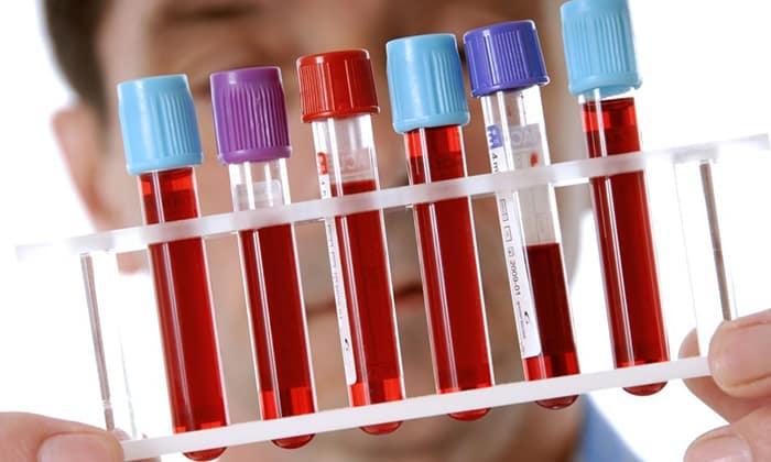 В крови больных выявляются высокой уровень тромбоцитов, ускорение СОЭ и снижение гемоглобина (признак анемии)