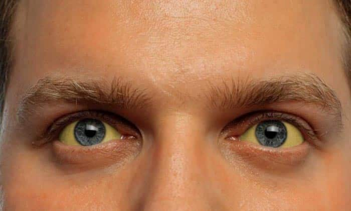 Желтушность кожных покровов сильно выражена при поражении головки органа