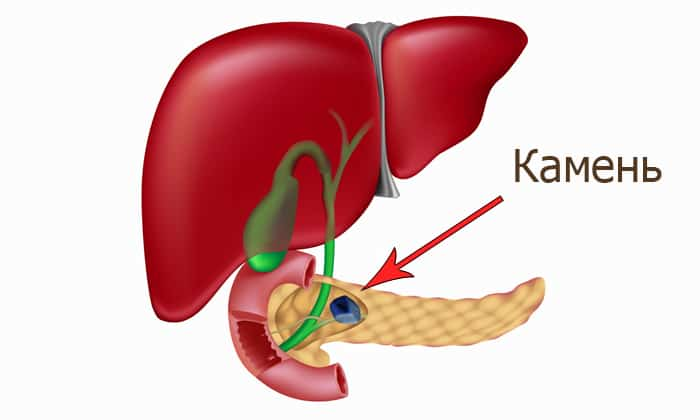 При наличие камней в главном панкреатическом протоке отток ферментов нарушается, из-за чего начинают разрушаться здоровые ткани