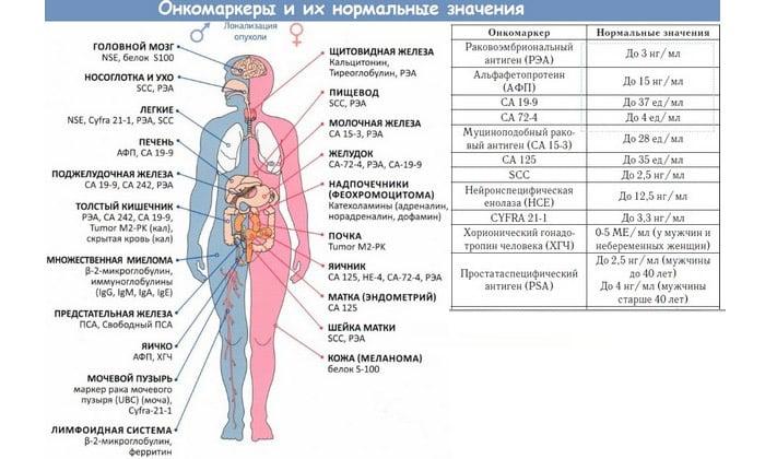 У больных раком часто выявляется раковый эмбриональный антиген. Нередко обнаруживаются такие онкомаркеры, как CA-242, CA-494 и CF-50