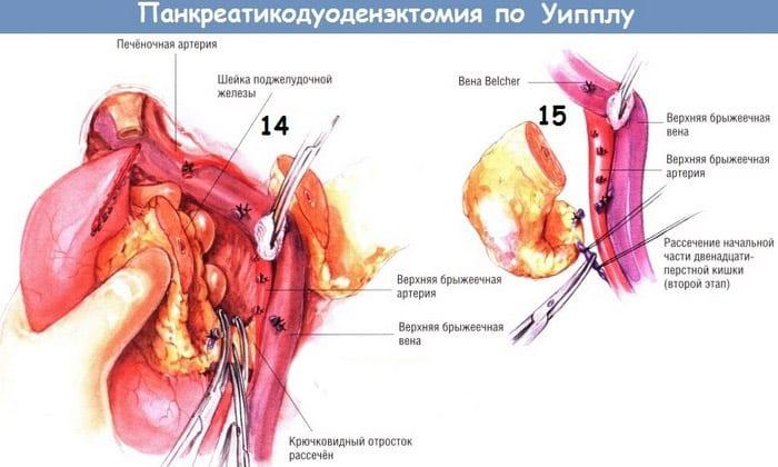 При поражении метастазами головки железы проводится операция Уиппла