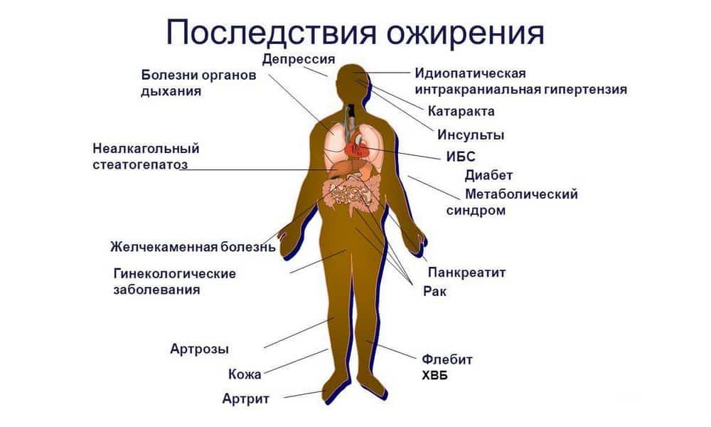 Дополнительно на фоне заболеваний поджелудочной железы наблюдается нарушение гормональной функции, что становится причиной избыточного веса