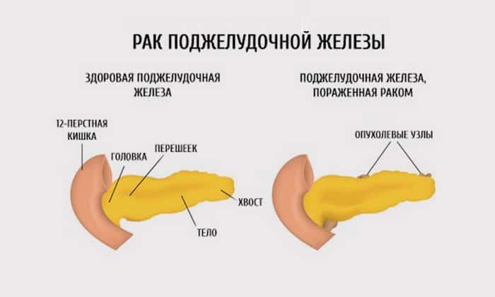 Как свидетельствует статистика, раком поджелудочной железы мужчины заболевают в 1,5-2 раза чаще, нежели женщины