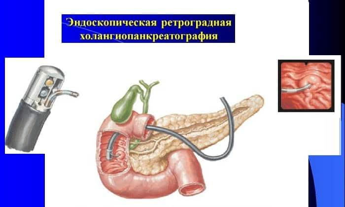 Эндоскопическая ретроградная холангиопанкреатография - это комбинированный рентгенологический метод исследования, который отличается высокой точностью и информативностью