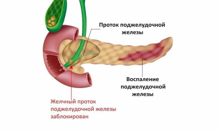 Хронический панкреатит. Неоднородность структуры органа свидетельствует о надвигающемся обострении