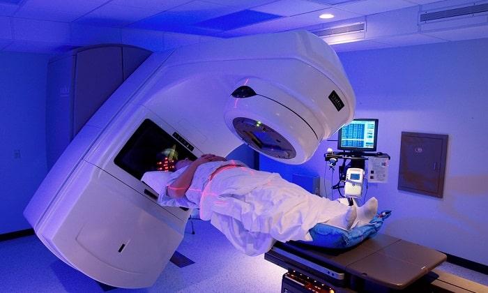 Распространенным видом терапевтического лечения при злокачественных новообразованиях поджелудочной железы считается лучевое облучение