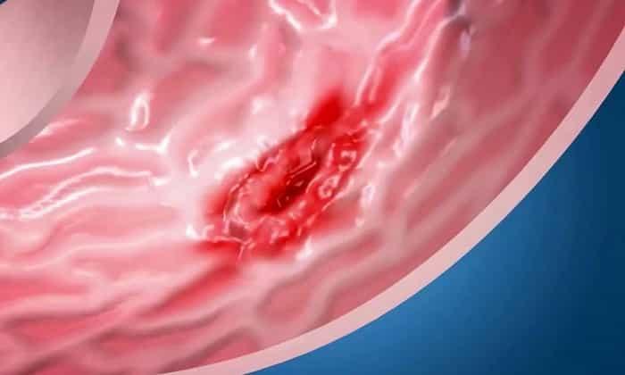 Наличие язв на слизистых оболочках желудка и двенадцатиперстной кишки - первый признак гастриномы