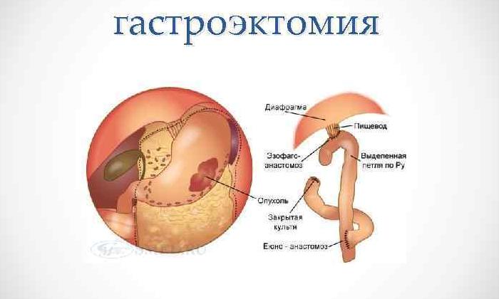 В рамках лечения фармакологическое средство применяют при перенесённой гастроэктомии
