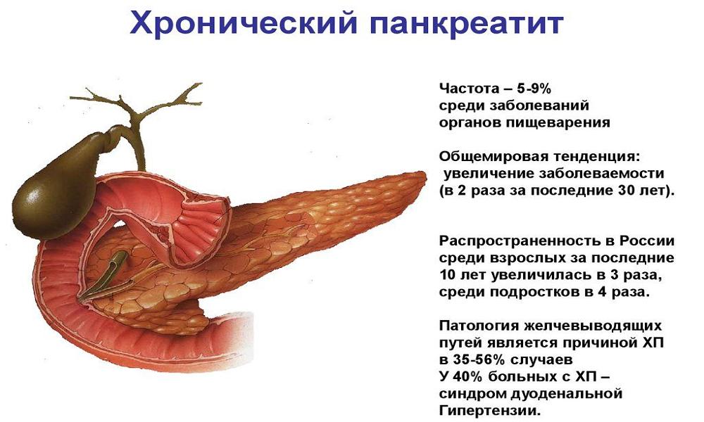 В рамках лечения фармакологическое средство применяют при панкреатите