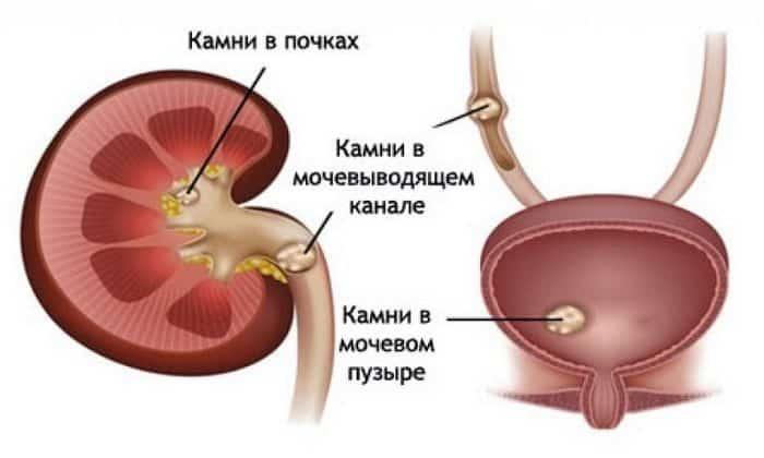 Дротаверин оказывается эффективным в осуществлении терапии спазмирования мускулатуры ЖКТ при почечной колике