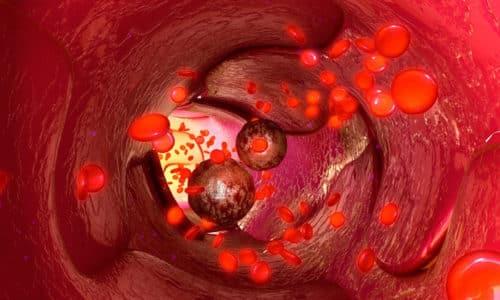 Фармакокинетика проявляется быстрым достижением предельной концентрации основного активного вещества в кровяной плазме
