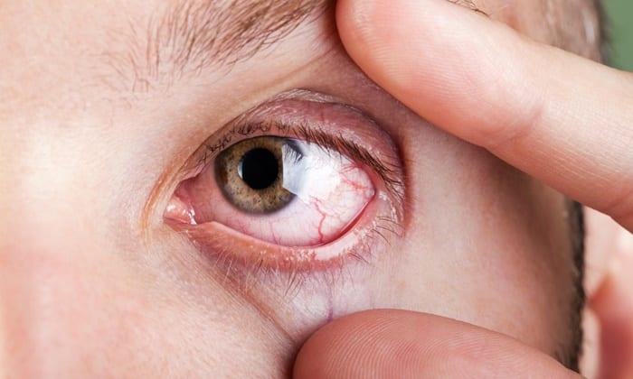 Реополиглюкин назначают при заболеваниях сетчатки глаза, патологий зрительного нерва