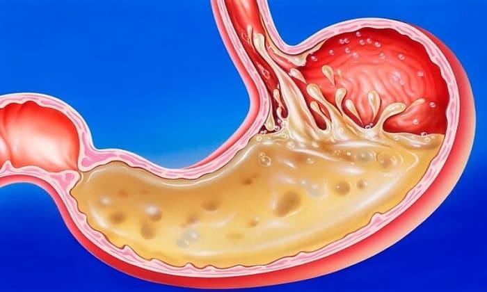 Препарат назначается при хроническом гастрите с пониженной кислотностью желудка