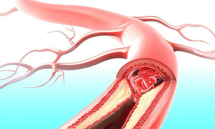 Препарат устраняет спазм кровеносных сосудов