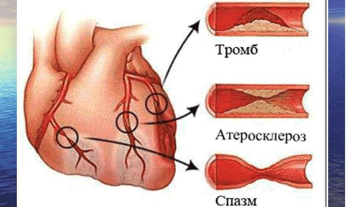 Показанием к назначению средства является стенокардия