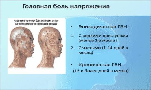 При головной боли возможно однократное применение препарата