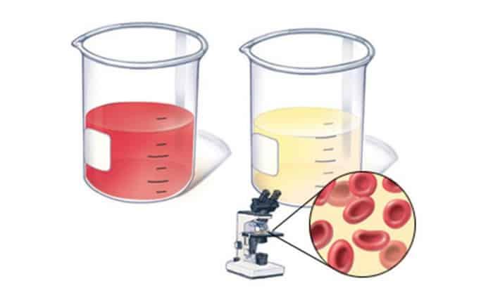 Продолжительный прием препарата фестал приводит к повышенному содержанию мочевой кислоты в урине и крови