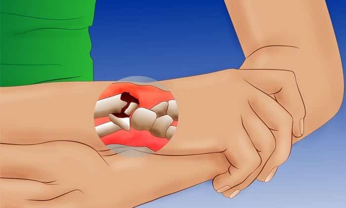 Метилурацил назначают при переломах костей