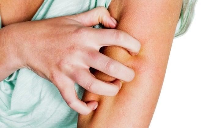 После приема Мотилиума Экспресс иногда могут быть аллергические реакции, в том числе крапивница