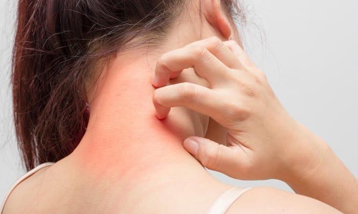 При приеме препарат возможно появление аллергической сыпи
