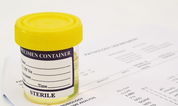 При назначении препарата больным муковисцидозом, необходимо периодически делать анализ мочи