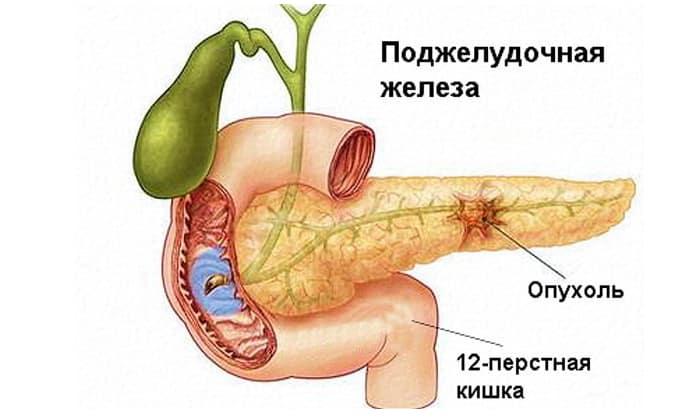 Препарат используют для лечения доброкачественных и злокачественных опухолях поджелудочной железы
