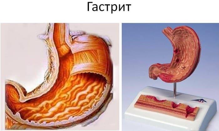 Лекарство применяют при гастрите