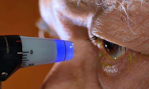 Совместное применение нитратов и Атропина характеризуется повышением внутриглазного давления