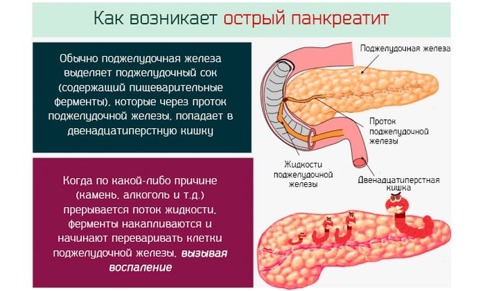 Панкреатит относится к заболеваниям воспалительного характера. Оно поражает поджелудочную железу и неблагоприятно сказывается на выработке ферментов
