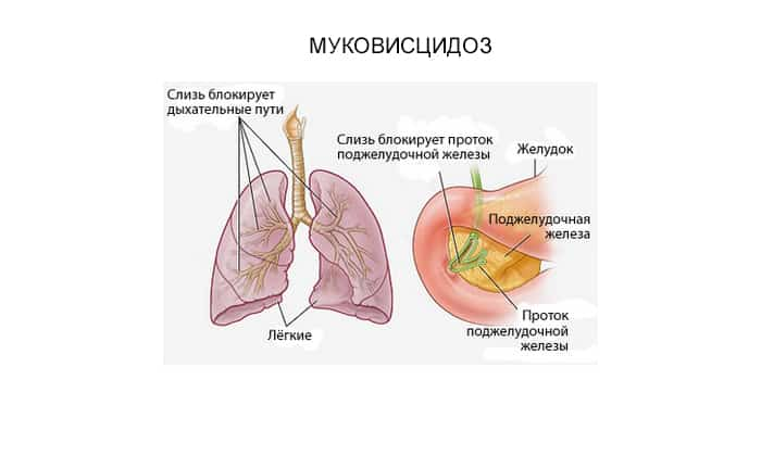 Если у маленького пациента диагностирован муковисцидоз, то ему придется принимать препарат каждый раз во время еды. Необходимое количество ферментов при этом рассчитывается с учетом возраста и веса ребенка